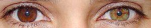 300pxheterochromia